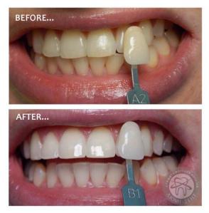 отбеливание зубов фото, до и после Люмидент