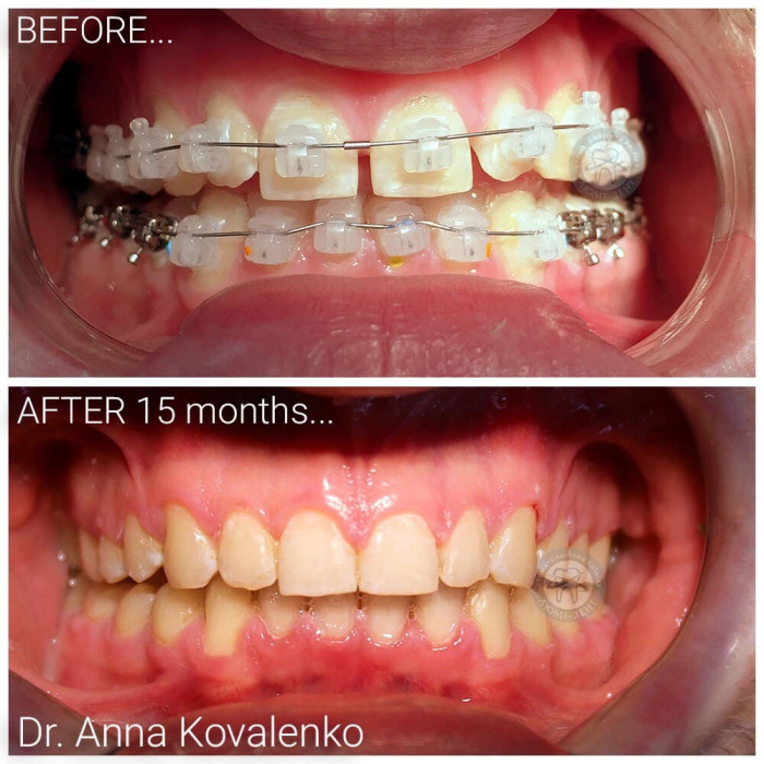 Керамические брекеты на зубы Киев фото Люми-Дент
