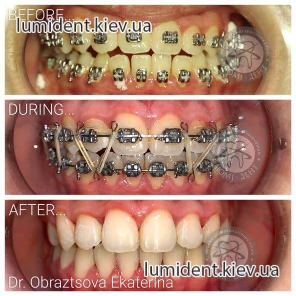 Брекеты на зубы система фото Киев Люми-Дент