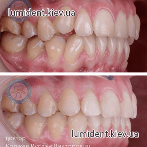 Правильний прикус зубів фото Люмі-Дент