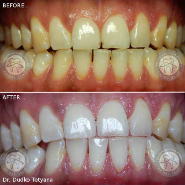 Отбеливание зубов фото до после Люми-Дент