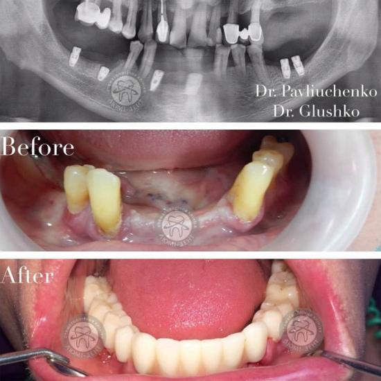 Зубні імпланти за і проти фото Люмі-Дент