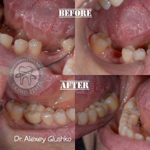 Протезування зубів імплантація Київ фото Люмі-Дент