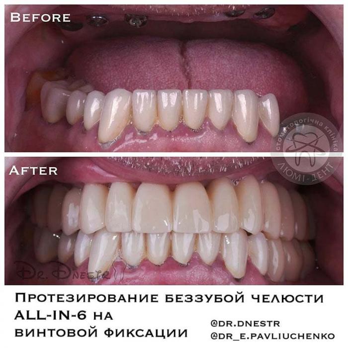 Имплантация зубов фото до и после Люми-Дент