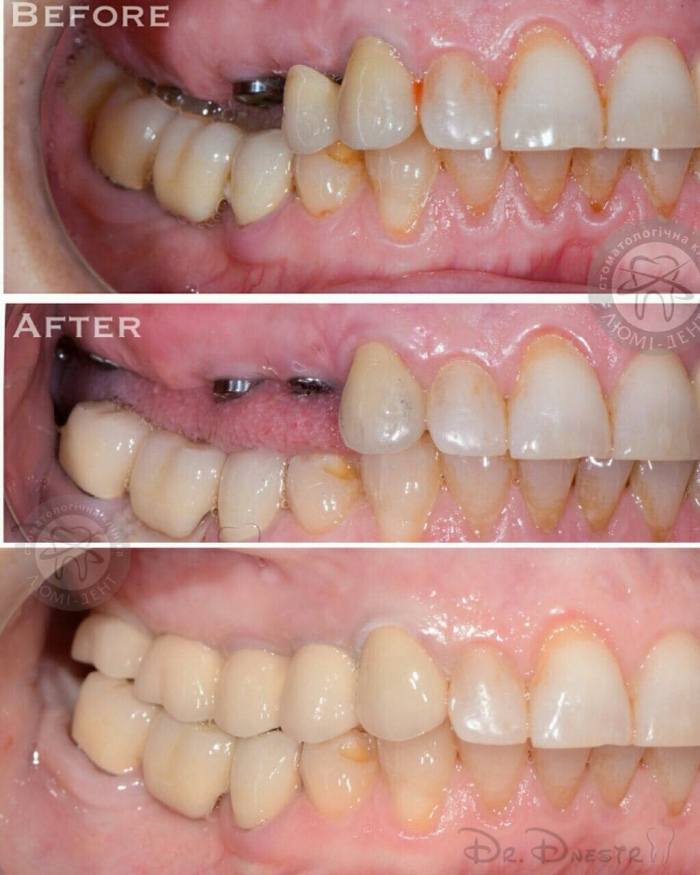 Prosthetics with dental crowns photo Lumi-Dent