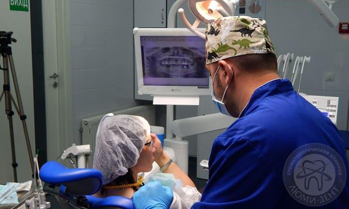 Рентгеновский снимок зубов рентген Киев Люмидент