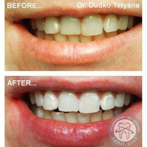 отбеливание зубов киев, фото, до и после