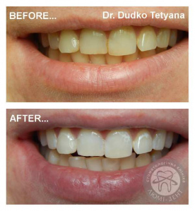 отбеливание зубов киев, фото, до и после Люмидент