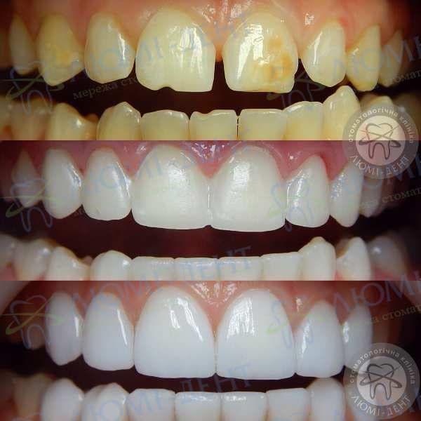 Керамические зубы коронки фото Люми-Дент