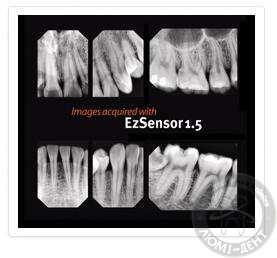 прицільний знімок зубів
