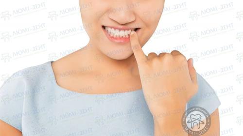 Рухливість зубів фото ЛюміДент