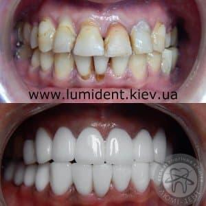 Hollywood dental veneers