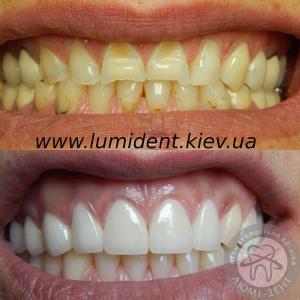 Керамические Виниры на зубы фото до и после Киев цена Люмидент