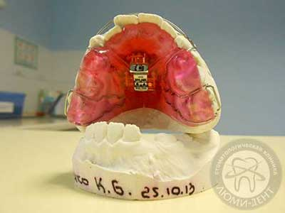 съемные платины на зубы для выравнивания зубов Киев Люми-Дент