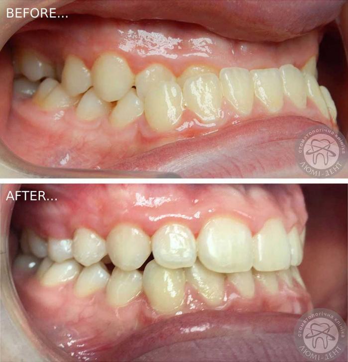 Трейнер ортодонтический