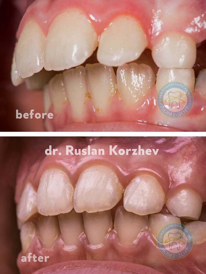 Трейнер для зубов отзывы