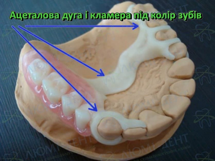 Ацеталовий протез фото Люмі-Дент