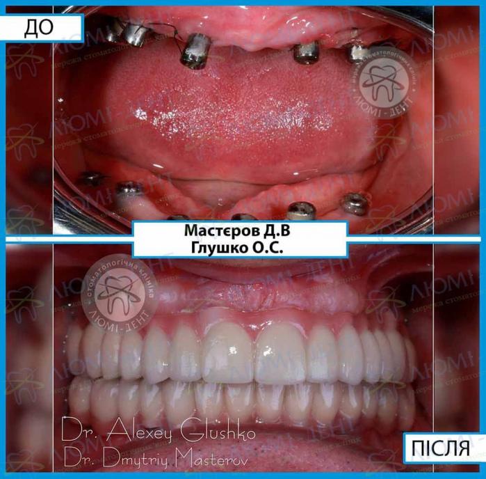 Бюгельні зубні протези фото Київ Люмі-Дент