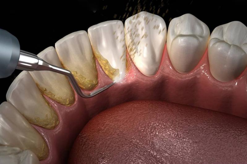 Професійне чищення зубів фото Люмідент