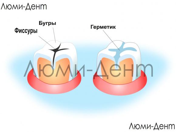Герметизация фиссур зубов Киев