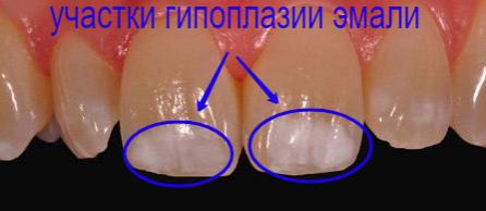 Гипоплазия эмали зубов фото Люми-Дент