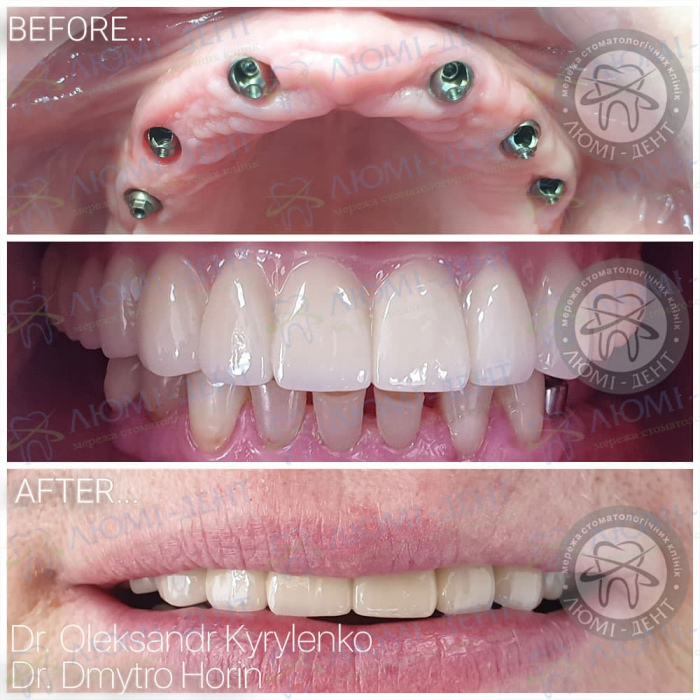 зубные протезы при полном отсутствии зубов фото Люми-Дент
