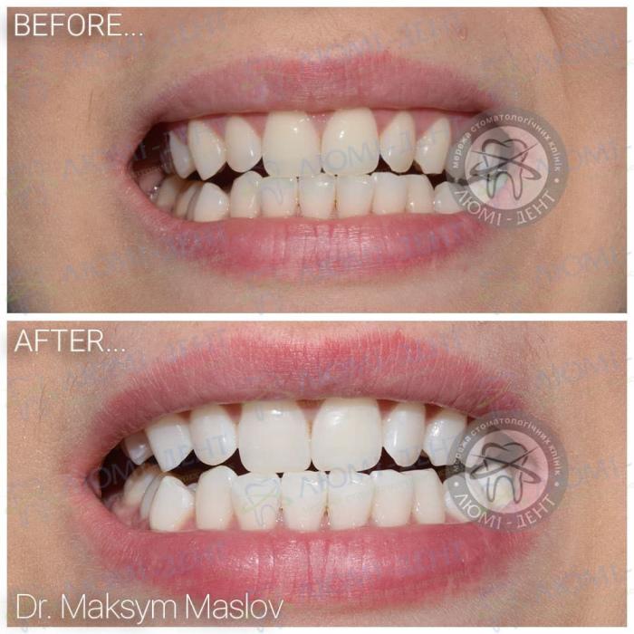 химическое отбеливание зубов фото ЛюмиДент