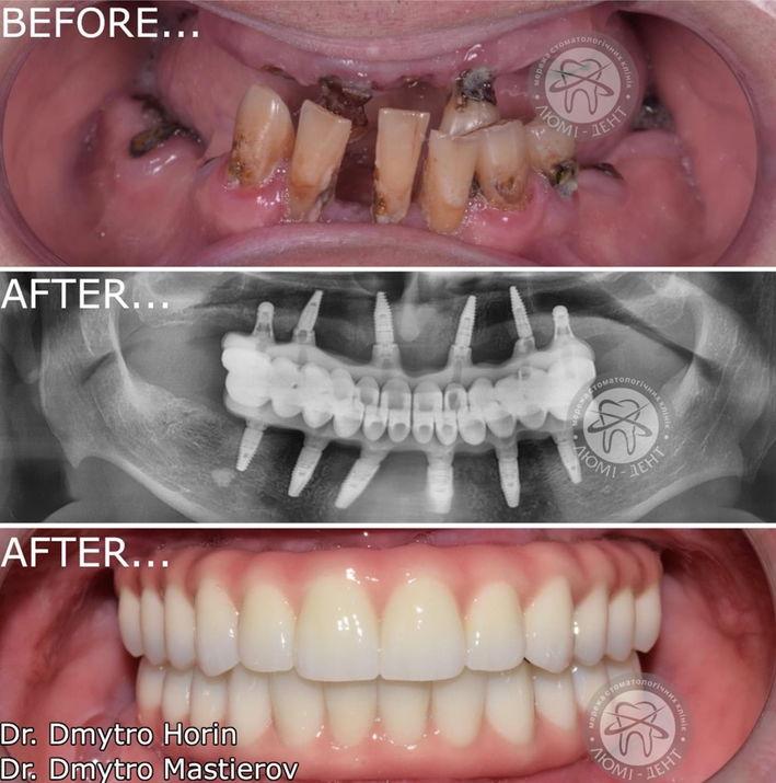 Протезирование зубов цена Киев фото до и после Люми-Дент