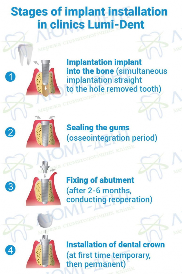 Implant Implantat Implantant photo Lumident