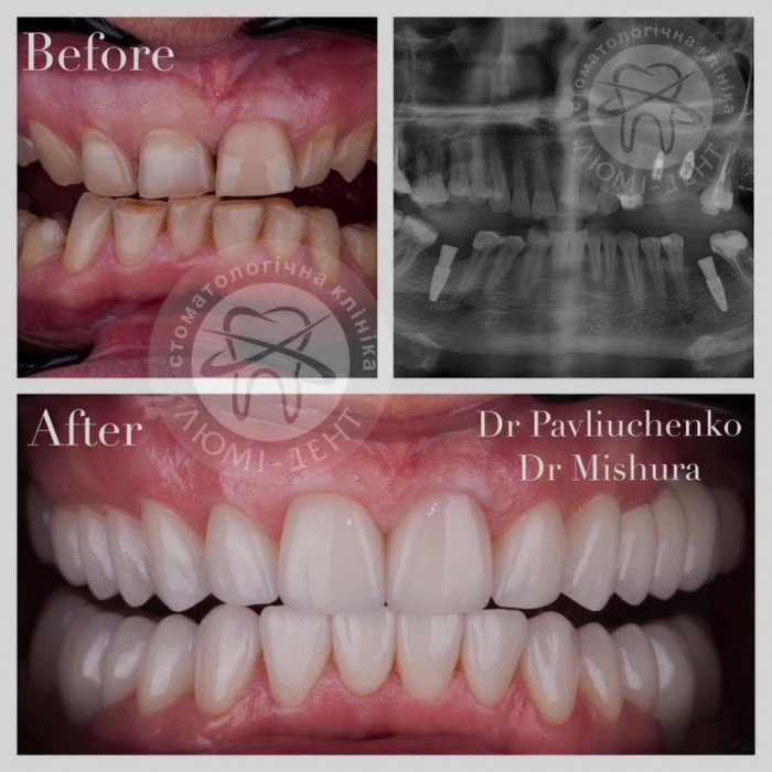 Імпланти зубов фото Люмі-Дент