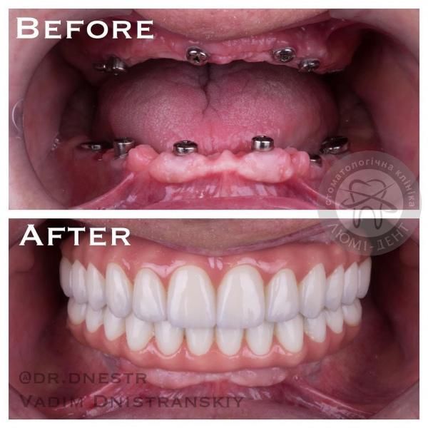 Протезування імплантація зубів ціна Київ Люмі-Дент
