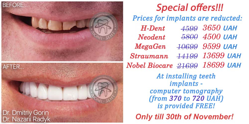 teeth implantation