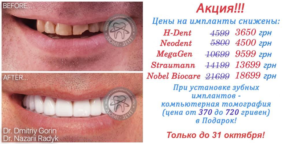 Зубные импланты фото Люми-Дент