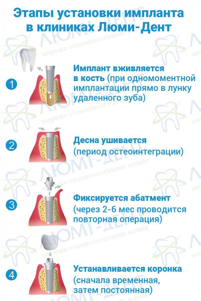 Имплантация зубов этапы Люми-Дент