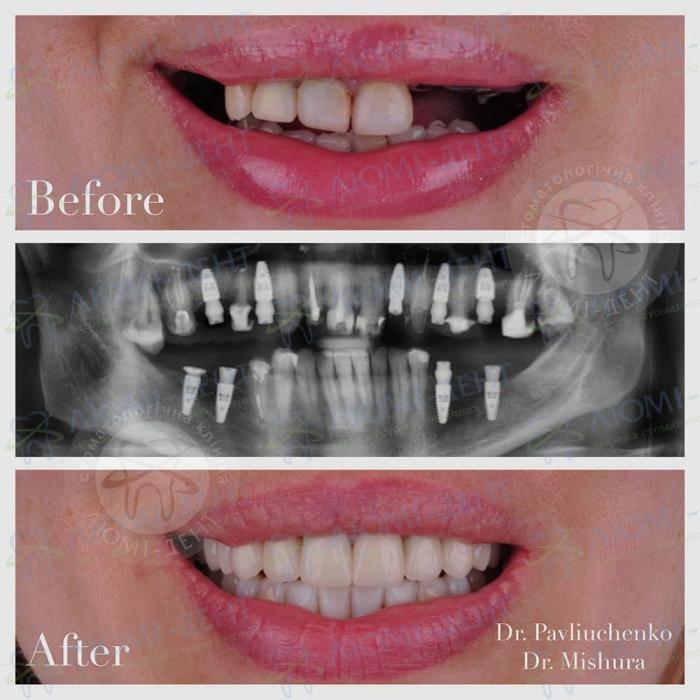 Имплантация зубов за один день зубные импланты Киев Люми-Дент