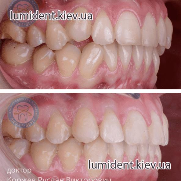 Инвизилайн каппы на зубы фото Люмидент