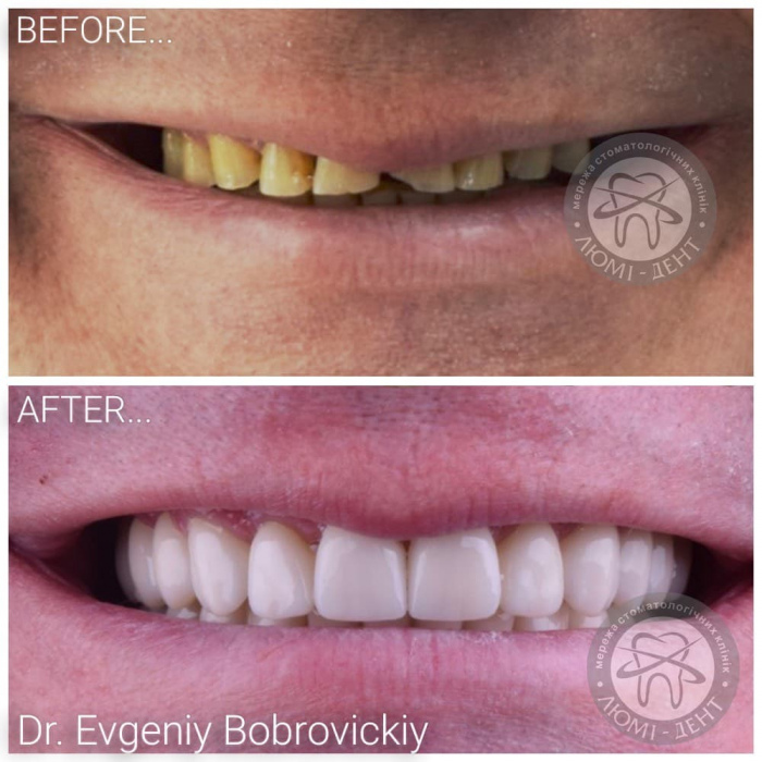 Crowns on teeth photo before after Lumi-Dent