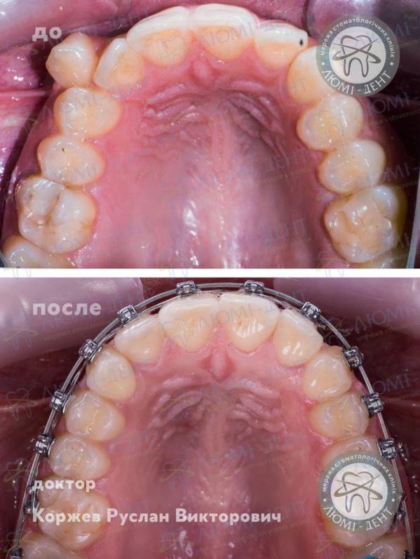 брекет система для зубов фото ЛюмиДент