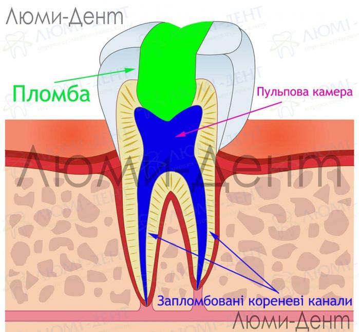 Ендодонтичне лікування зубів фото Люмі-Дент