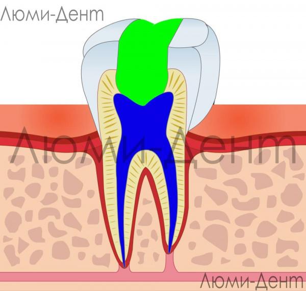 Эндодонтическое лечение корневых каналов Люми-Дент