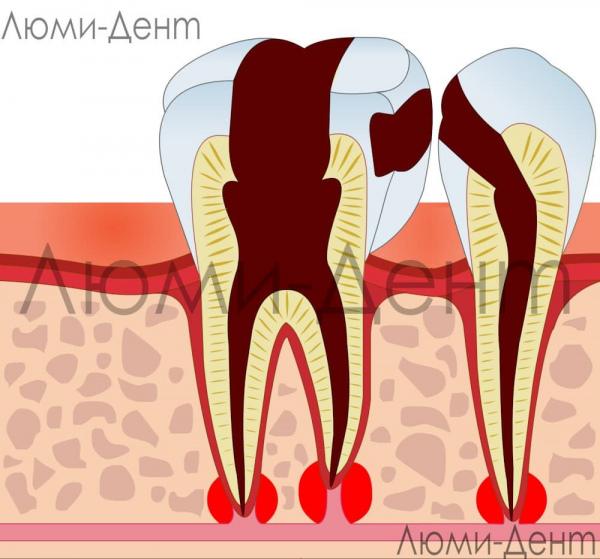 Лечение нерва зуба фото - Люмидент