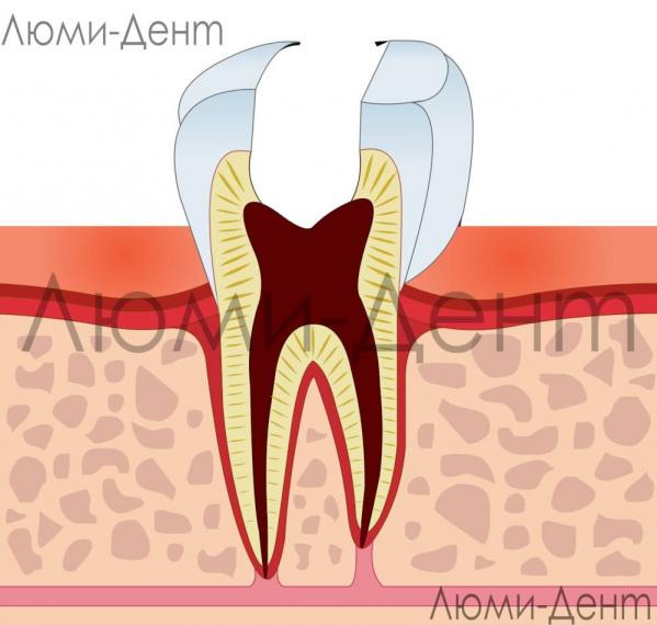 Лечение зубных нервов фото Люми-Дент