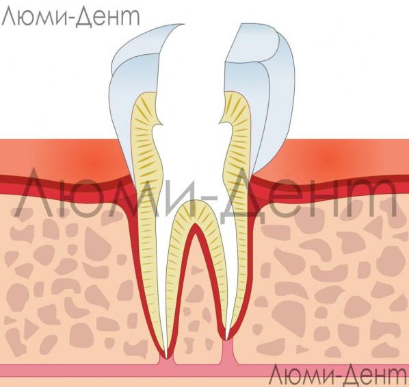 Удаление нерва из зуба фото Люмидент
