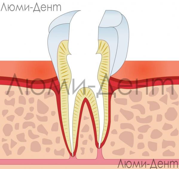 Удаление нерва зуба - Люмидент