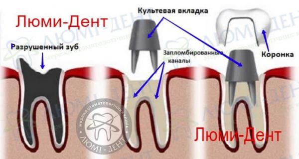 металлокерамика зубов коронки фото Люми-Дент