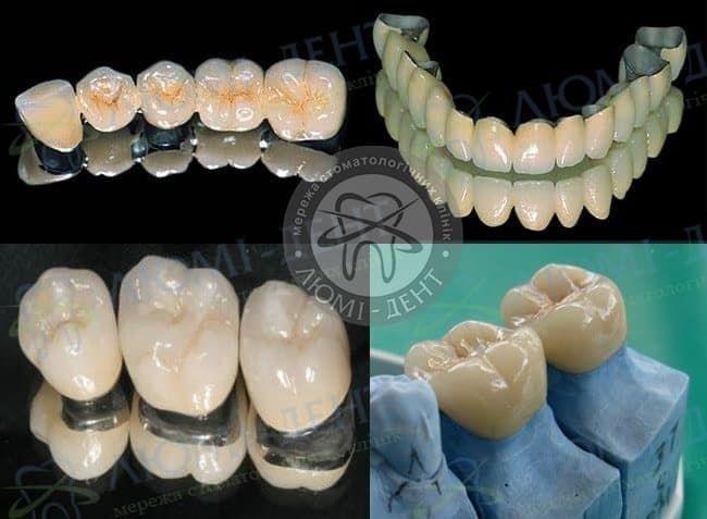 Металлокерамическая коронка на зуб Киев Люми-Дент