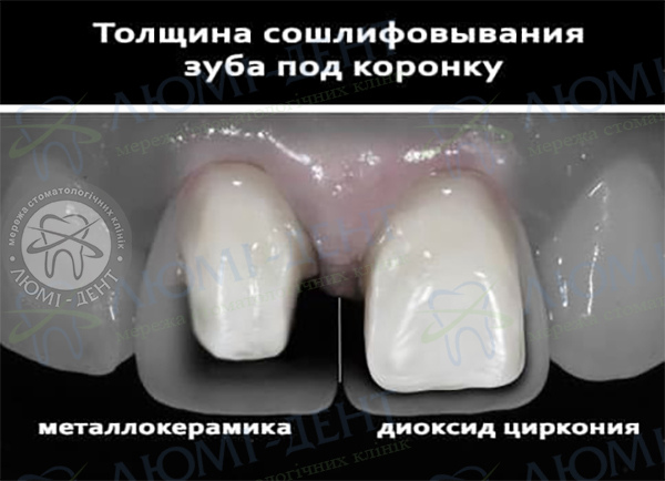 Металокерамічні коронки Київ фото