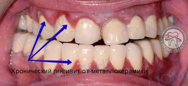 Металокераміка зубів Київ фото