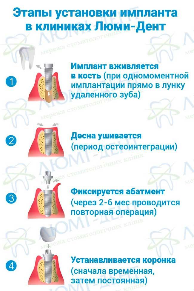 Методы имплантации зубов фото Люми-Дент