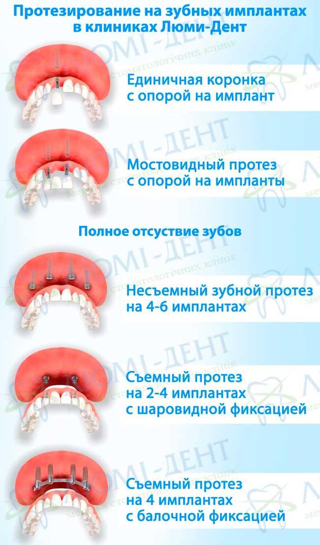 Имплантация зубов виды методы фото Люми-Дент